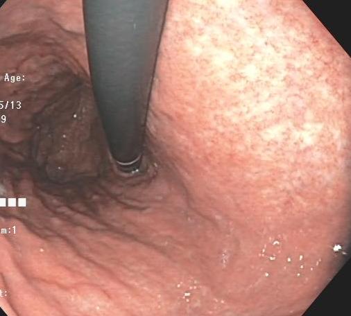 ピロリ菌感染胃炎