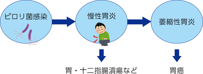 ピロリ菌感染